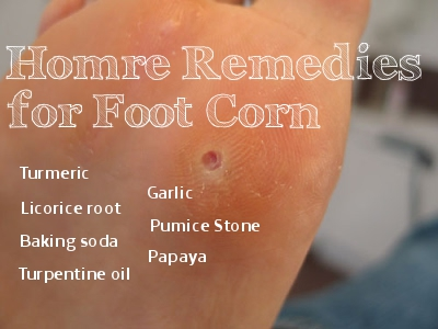 Home Remedies for Foot Corn