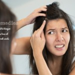 8 Quick Home remedies to get rid of dandruff for good