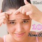Effortless Home Remedies for Blackheads 10 easy treatments at home