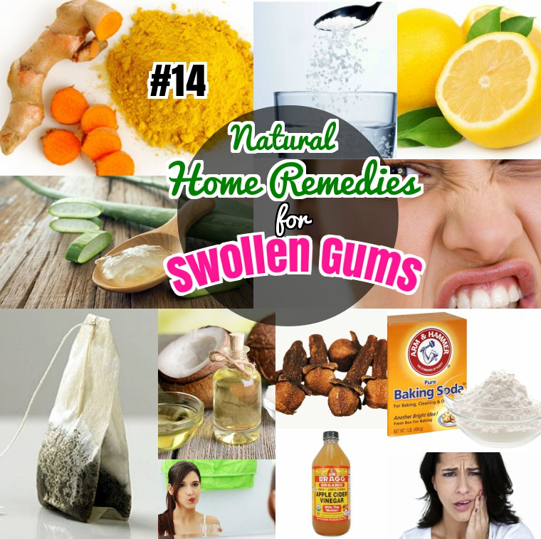 Home Remedies for Swollen Sore gums Gingivitis