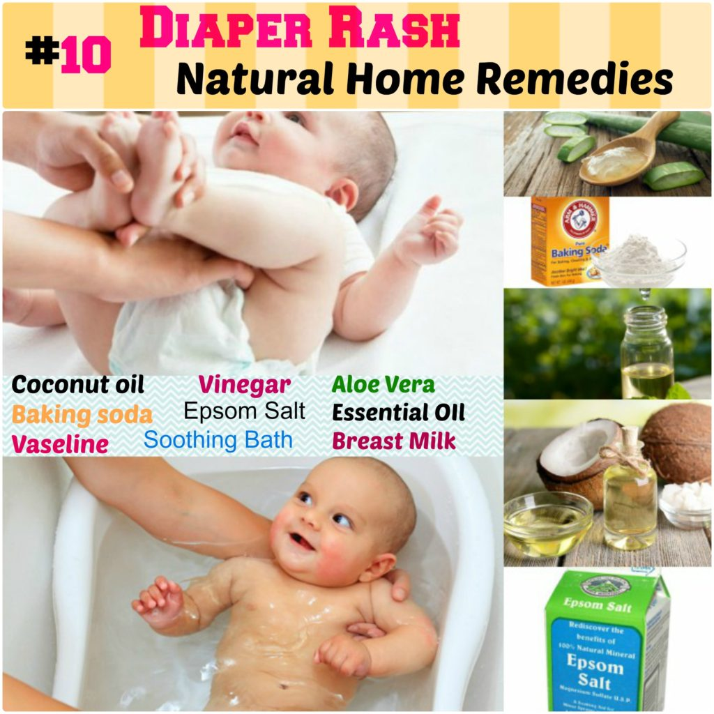 Natural Home Remdies for Baby Diaper Rash