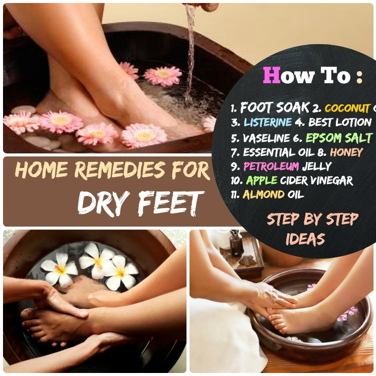 Home Remedies for dry feet how to get rid of it step by step