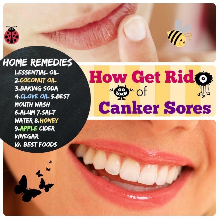 Home Remedies for Canker Sores, how to get rid of canker sores