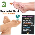 How to Get Rid of Foot Fungus #11 Athlete's Foot Home Remedies