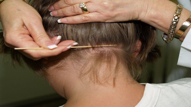 How to Prevent Lice Infestation ?