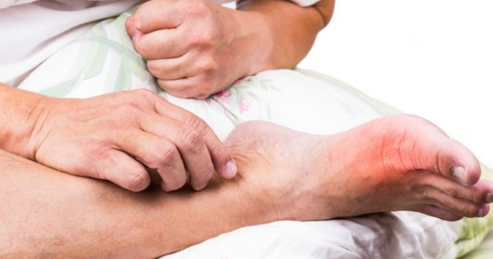 Natural Remedy For Gout In Toe