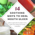 14 Best Foods and Home Remedies for Mouth Ulcers