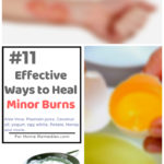 11 Ways to Treat Minor Burns with Home Remedies