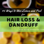 6 Ways to Use Lemon and Lemon Peel for Hair loss and Dandruff