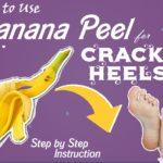Ripe Banana Peel for Cracked Heels: Banana Peel & Tea Tree Oil