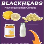 3 Ways How to Use Lemon for Blackheads